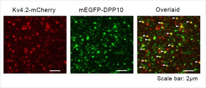 Kv4.2 - DPP10 チャネル複合体の1分子蛍光イメージング画像