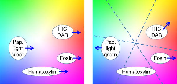 Figure 5 – With traditional color adjustment, (left) red enhancement for eosin affects all other stains, whereas multiaxis color adjustment (right) enables independent optimization of colors for each stain