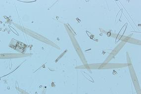 図3 珪藻(対物10×)