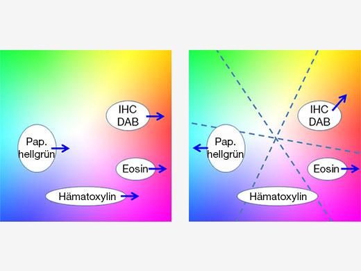 Abbildung 5 – Bei der traditionellen Farbanpassung (links) wirkt sich die rote Verstärkung für Eosin auf alle anderen Färbungen aus, während die mehrachsige Farbanpassung (rechts) eine unabhängige Optimierung der Farben für jede Färbung ermöglicht.