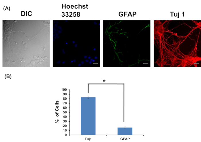 Figure 7: Characterization of neurosphere-forming high density cultures with neuronal marker Tuj1 and astrocyte marker GFAP.
