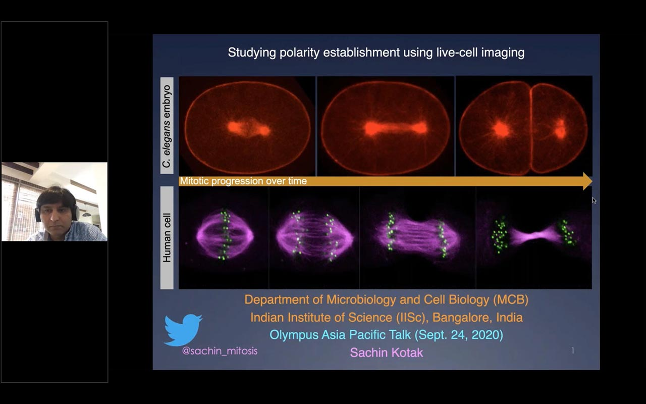 Live Cell Imaging Microscopy to Study Establishment of Cell Polarity