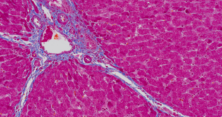 Stained pig liver microscope image captured using the DP28 camera.