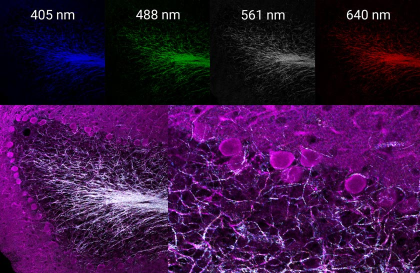 Multispectral reflectance confocal image of endogenous axon myelination