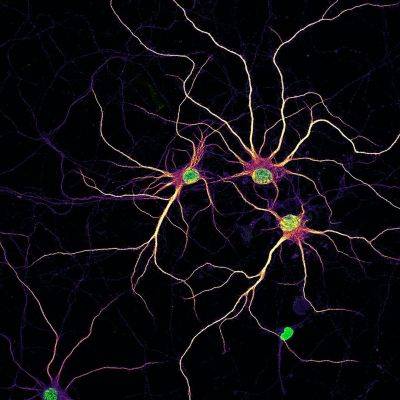 Image of primary rat cortical neurons at 14 days in vitro with nuclei (green) and developing dendrites (mpl-inferno LUT) with MAP2 staining added to visualize outlines of neurons