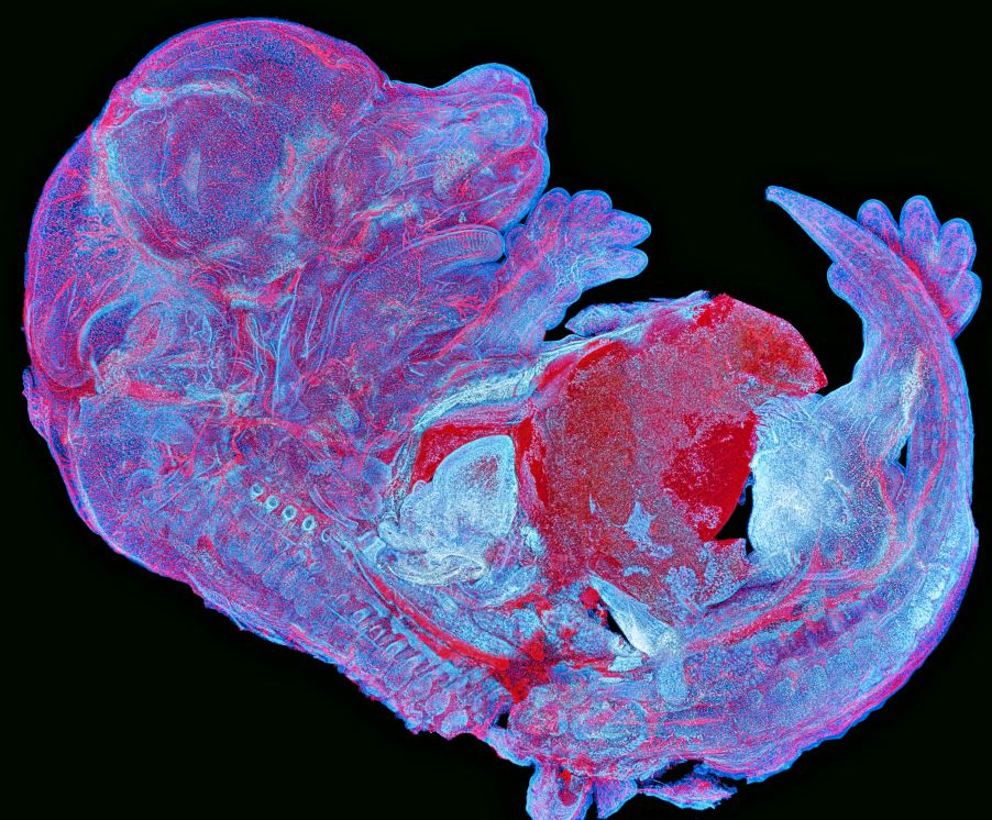Image of a complete mouse embryo