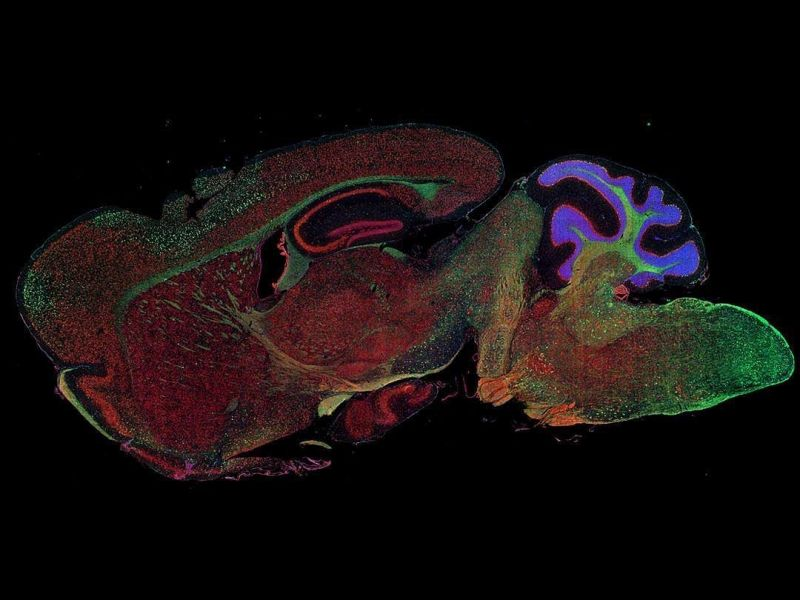 Fluorescence imaging of a mouse brain