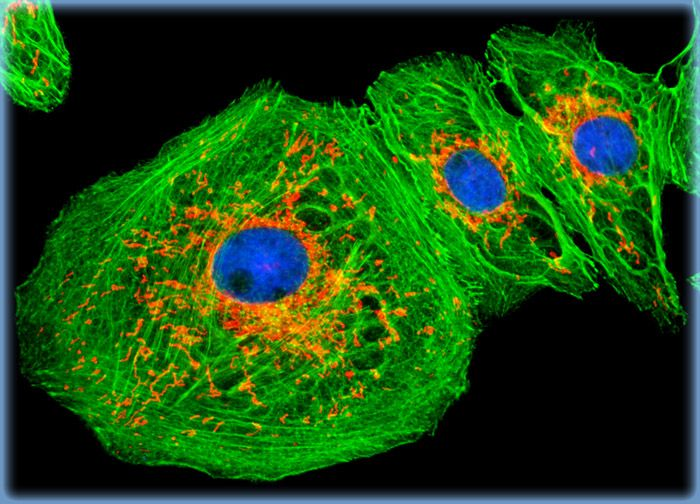 Normal African Green Monkey Kidney Epithelial Cells (Vero)